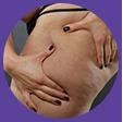 cellulite-icon
