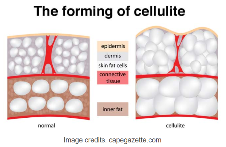 Dorra Slim the forming of cellulite